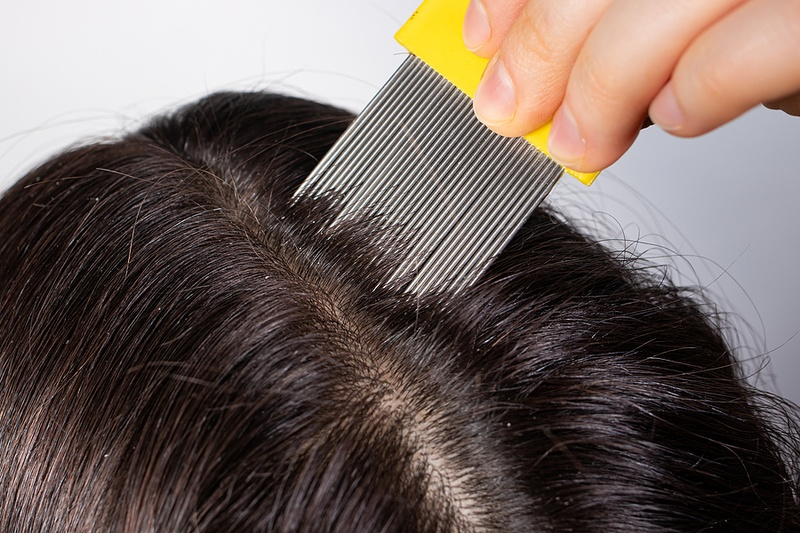 coconut oil lice nits combing