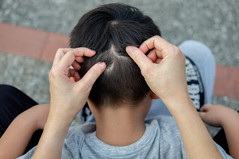 Looking for nits in coconut oil lice study